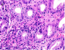 Gastrointestinal findings in 26 adults with common variable immunodeficiency: The fickle nature of the disease manifests in gastrointestinal biopsies