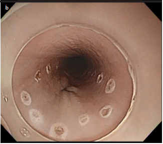 Efficacy of traction, using a clip-with-thread, for esophageal endoscopic submucosal dissection for esophageal lesions with fibrosis in an ex vivo pig training model